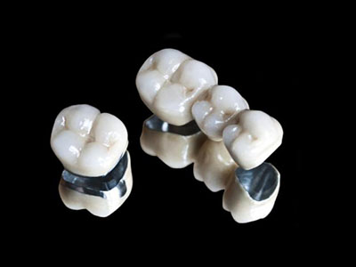 Dental Crowns and Bridges in Adelaide